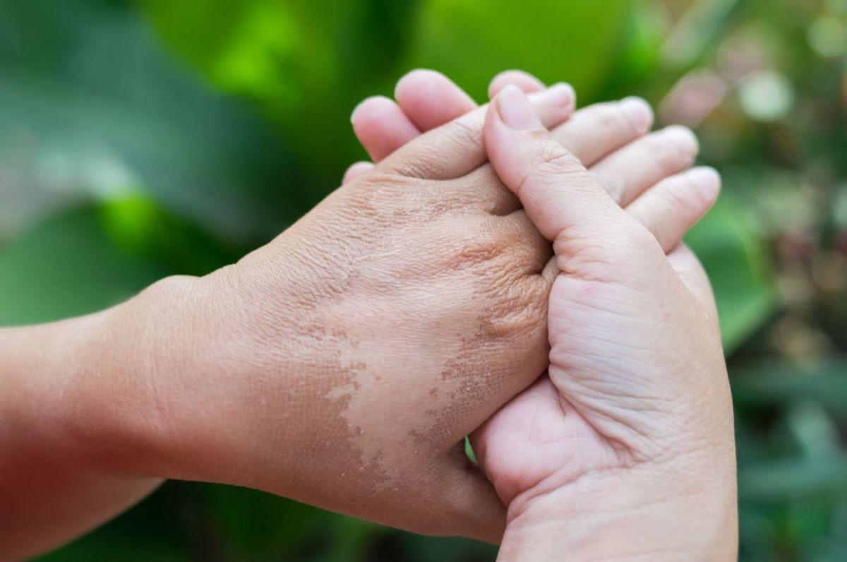 Cara Mengetahui Derajat Luka Bakar dan Bagaimana Perawatannya