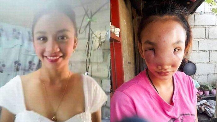 Parah, Gara-gara Pencet Jerawat di Hidung, Wanita ini Jadi Buta dan Wajahnya Bengkak
