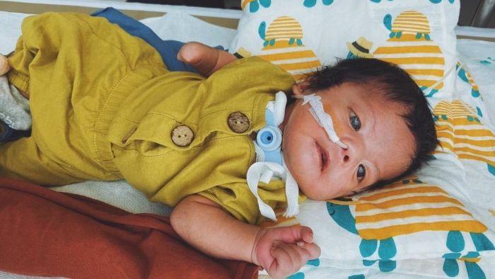 Kisah Hiro, Bayi yang Terserang Moebius Syndrome Sebabkan Wajahnya Lumpuh