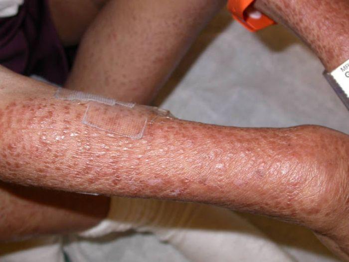 Macam-macam Penyakit Kulit Beserta Gejala dan Cara Mengobatinya