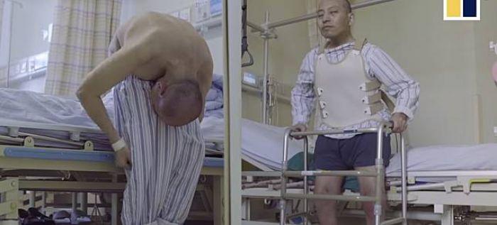 Setelah 28 Tahun Tubuh Terlipat Akhirnya Pria ini Merasakan Tubuh Berdiri Normal