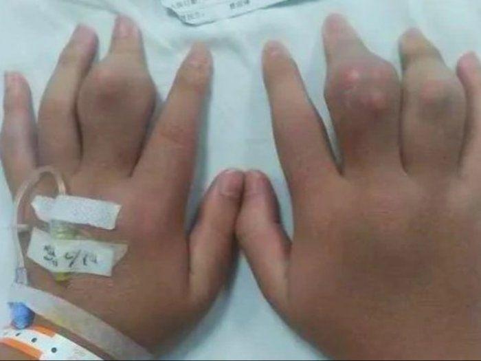 Gara-gara Sering Minum Boba, Remaja ini Tak Bisa Berdiri Hingga Tangan Bengkak