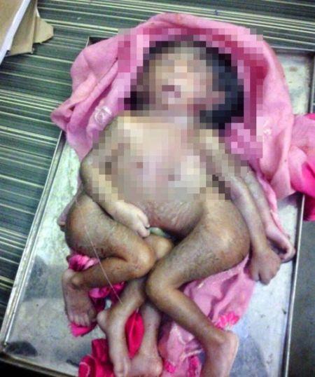 Memiliki 4 Tangan dan 4 Kaki, Bayi Ini Dianggap Reinkarnasi Dewa Ganesha